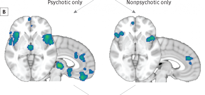 Psychotic and Nonpsychotic Biological Substrate